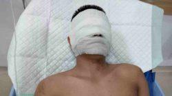 LAGI!! Wartawan jadi korban kekerasan oleh Orang Tidak Dikenal Wajah Rusak Di Siram Air Keras